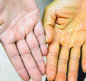 У Калуші побільшало хворих на жовтуху - Місцеві новини